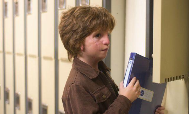 27次的手术,让这个10岁男孩活上去了,却也留下了一张不完满的面庞
