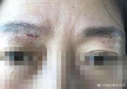 曝光南通俪人医疗美容医院,一家**美容医院!