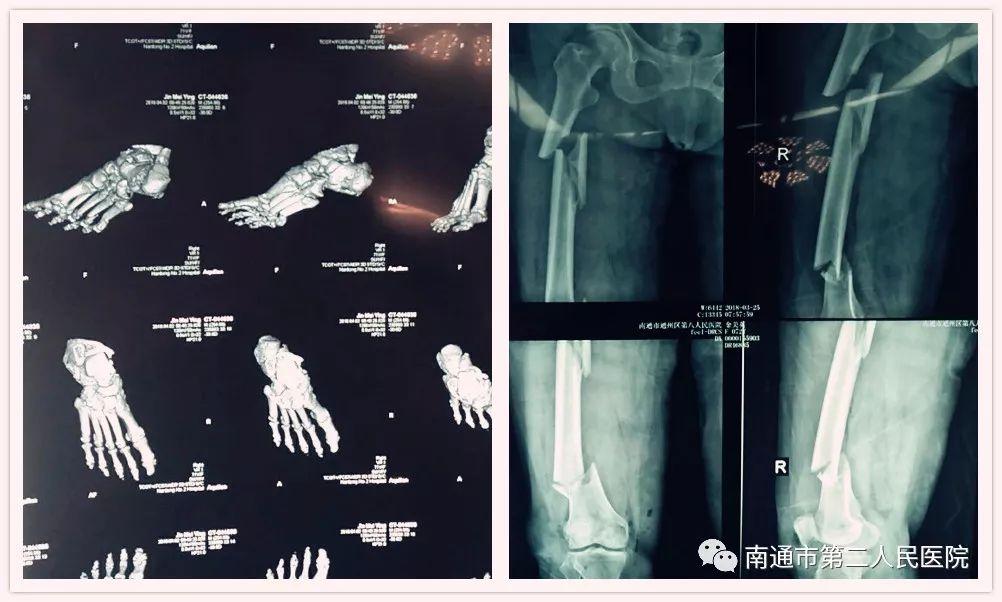 【赞】南通二院1台手术3种微创,乐成医治多段破坏性骨折患者