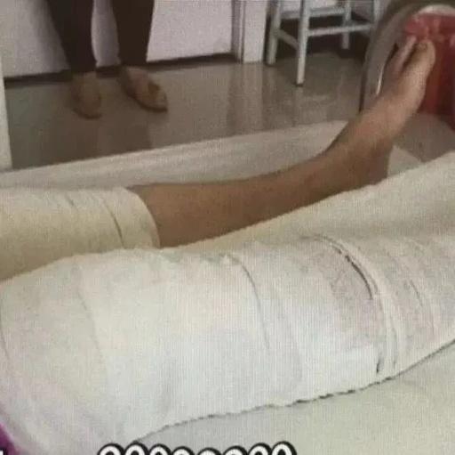 南通人留意了!女子右腿受伤,大夫把左腿当右腿割了…